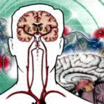 Различные нарушения кровообращения головного мозга