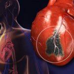 Снижение риска появления инфаркта миокарда