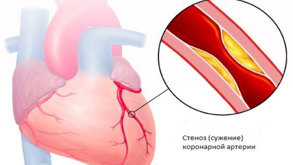 Стенокардия аритмия сердца