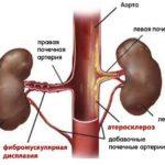 Стеноз артерий, расположенных в почках