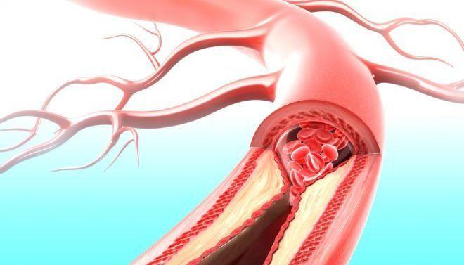 Стеноз почечных артерий