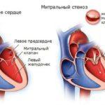 Стенозе митрального клапана