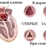 Стенозы митрального, аортального клапана