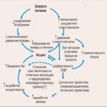 Цирроз разной формы развития