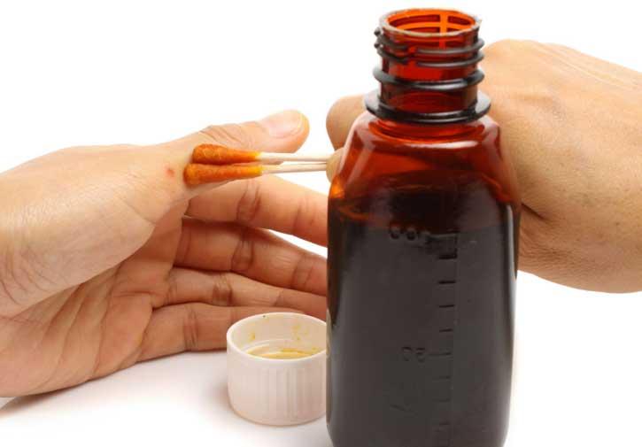 Изображение - Методы лечения гипертонии йодом Terapiya-jodistymi-nastojkami