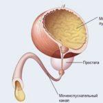 Тонус мочевого пузыря