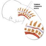 Травма спинного мозга