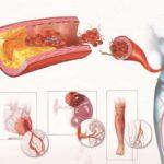 Улучшение кровообращения в почечных структурах
