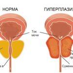 Увеличение общего объема клеток простаты