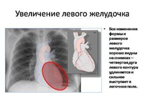 Увеличениеме левого желудочка