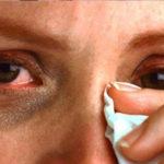 Возникновение сухости глаз и слезотечение