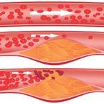 Является профилактикой возникновения холестериновых бляшек в сосудах
