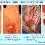 Язвенные патологии желудка