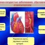 Заболевания сердца или сосудов