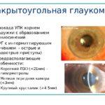Закрытоугольного типа глаукома