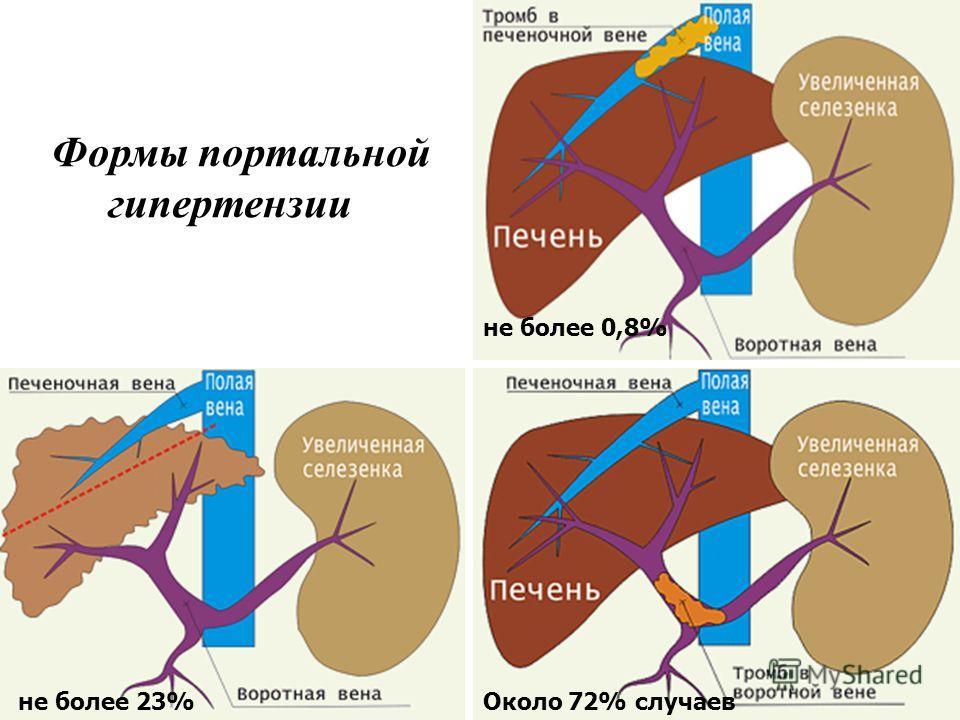 Портальная гипертензия клиника диагностика лечение