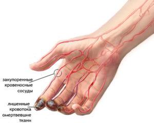 Давление на правой руке и на левой руке - почему разное?