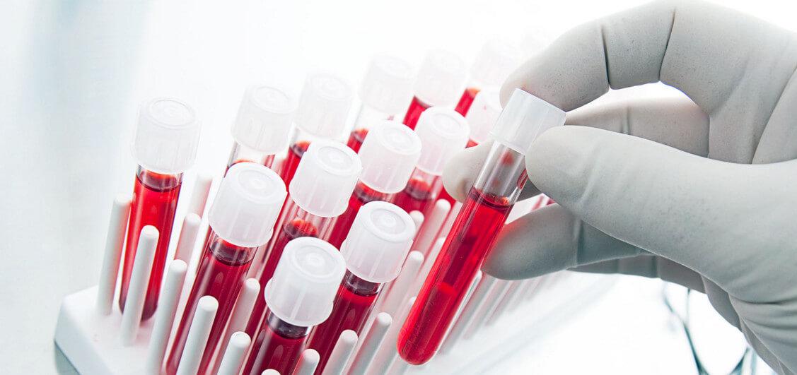 Понижение уровня лейкоцитов