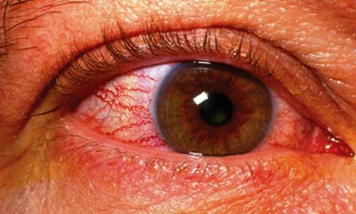 Артерии сетчатки глаза сильно сужены